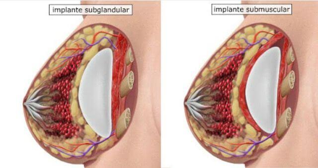 implante-de-protese-mamaria-subglandular-ou-submuscular